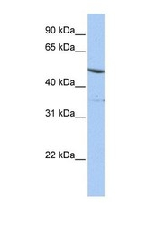 NBP1-52851 - IFRD1