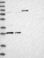 NBP1-84557 - IFT81 / CDV1