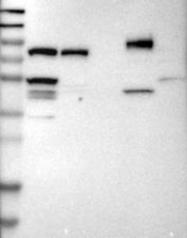 NBP1-84558 - IFT81 / CDV1