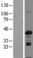 NBL1-11865 - IGBP1 Lysate