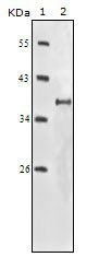NBP1-51536 - CD221 / IGF1R