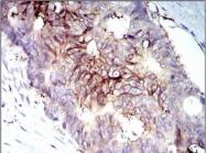 NB110-87052 - CD221 / IGF1R