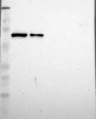 NBP1-84339 - IGF2BP3 / IMP3