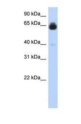 NBP1-59164 - IGFALS / ALS