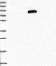 NBP1-89117 - IGFALS / ALS