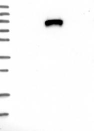 NBP1-89118 - IGFALS / ALS