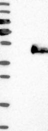 NBP1-88374 - IGFBP3