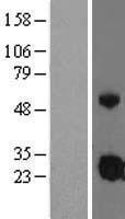 NBL1-11874 - IGFBP4 Lysate