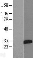 NBL1-11875 - IGFBP5 Lysate