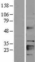 NBL1-11876 - IGFBP6 Lysate