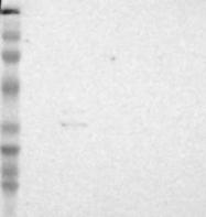 NBP1-83415 - IGFBP7