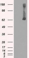NBP1-47778 - Glucokinase / Hexokinase-4