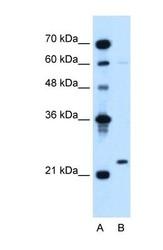 NBP1-58333 - CD179b