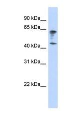 NBP1-59503 - IGSF11 / BTIGSF