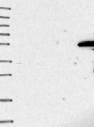 NBP1-92021 - IGSF11 / BTIGSF