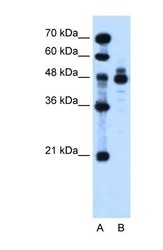 NBP1-59443 - Indian hedgehog protein / IHH