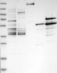 NBP1-89185 - ZNFN1A3 (IKZF3, Aiolos)
