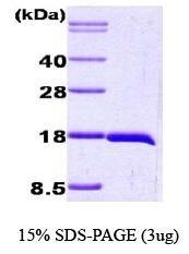 NBC1-18478 - Interleukin-1 beta / IL-1B