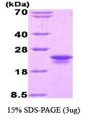 NBC1-18482 - Interleukin-1 beta / IL-1B