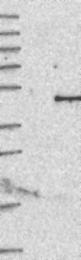 NBP1-84440 - Interleukin-12 beta / IL12B