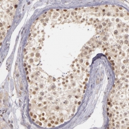 NBP1-84599 - CD213a1 / IL13RA1