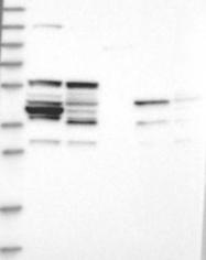 NBP1-88124 - CD213a1 / IL13RA1