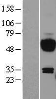 NBL1-11909 - IL15RA Lysate