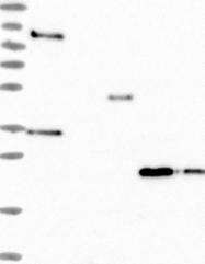 NBP1-83113 - Interleukin-17B / IL17B