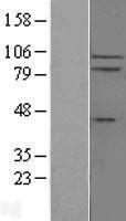 NBL1-11917 - IL17RC Lysate