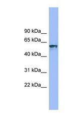 NBP1-59720 - CD218a / IL18R1