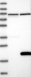 NBP1-83894 - IL1F5 / IL1L1