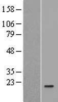 NBL1-11924 - IL1F5 Lysate