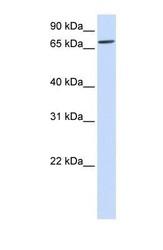 NBP1-69275 - IL1RAPL2 / IL1R9