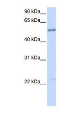 NBP1-69588 - IL1RL1 / ST2