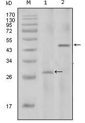 NBP1-47390 - Interleukin-2 / IL2