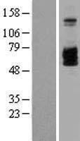 NBL1-11948 - IL2 Receptor beta Lysate