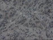 NBP1-47806 - Interleukin-3 / IL3