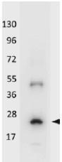 NBP1-42756 - Interleukin-32 / IL32