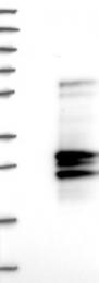 NBP1-82560 - Interleukin-32 / IL32
