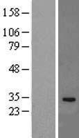NBL1-11954 - IL33 Lysate