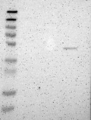 NBP1-86548 - CD125 / IL5RA