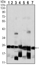 NBP1-47355 - Interleukin-6 / IL6