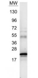 NB600-1131 - Interleukin-6 / IL6