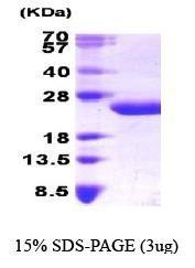 NBP1-30184 - Interleukin-6 / IL6