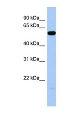 NBP1-69697 - ILDR1