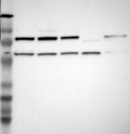 NBP1-84056 - ILF3 / DRBF