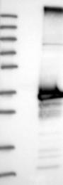 NBP1-86352 - Inositol monophosphatase 2 / IMPA2
