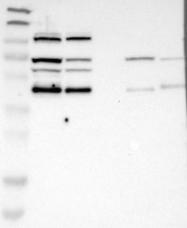NBP1-83655 - Inositol monophosphatase 3 / IMPA3