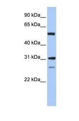NBP1-52933 - IMPDH1 / IMPD1