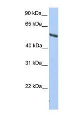 NBP1-53028 - IMPDH2
